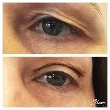 Plexr soft surgery - Cosmetic Skin Therapy